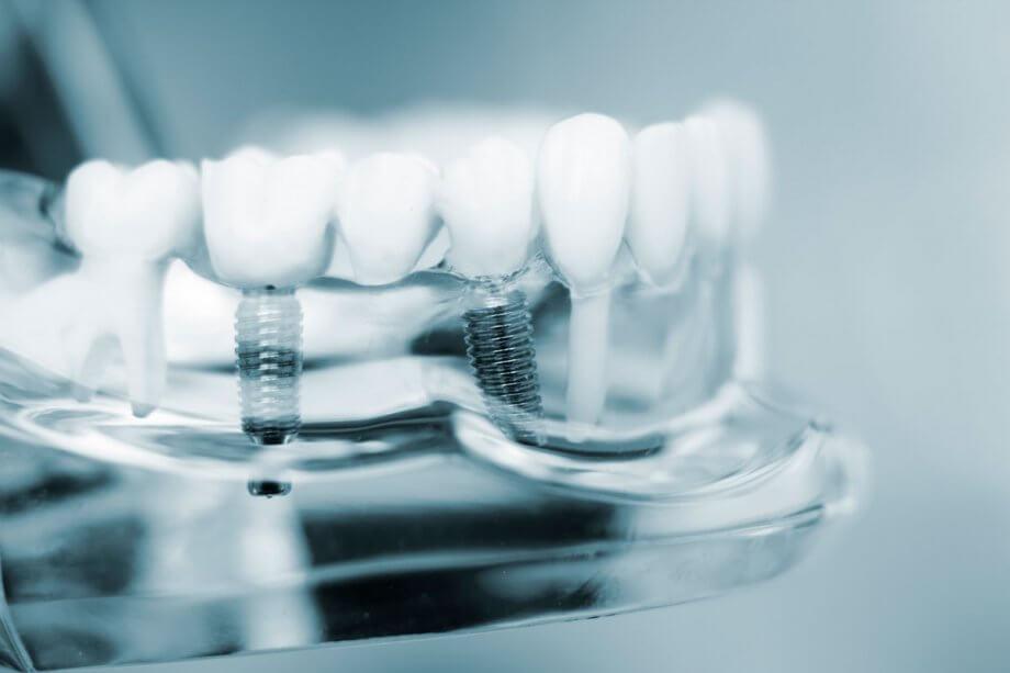 clear model of dental implants in jaw