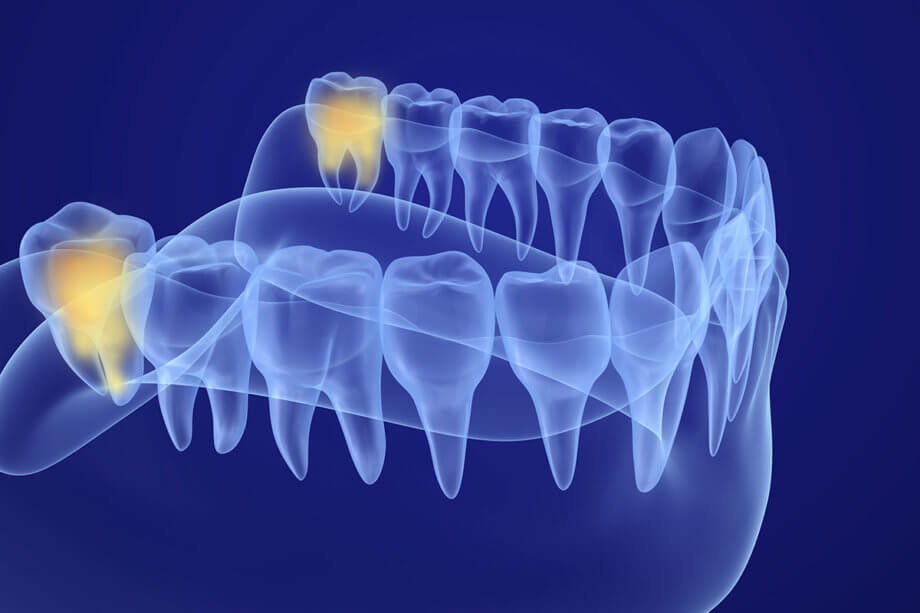 Top 10 Wisdom Teeth Questions and Answers